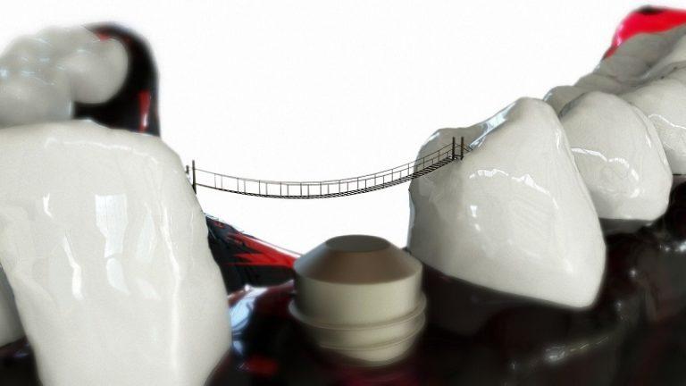 Zubni implantati kao zamjena izgubljenog zuba